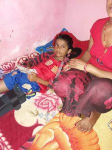 Subash Sunar und sein gebrochenes Bein